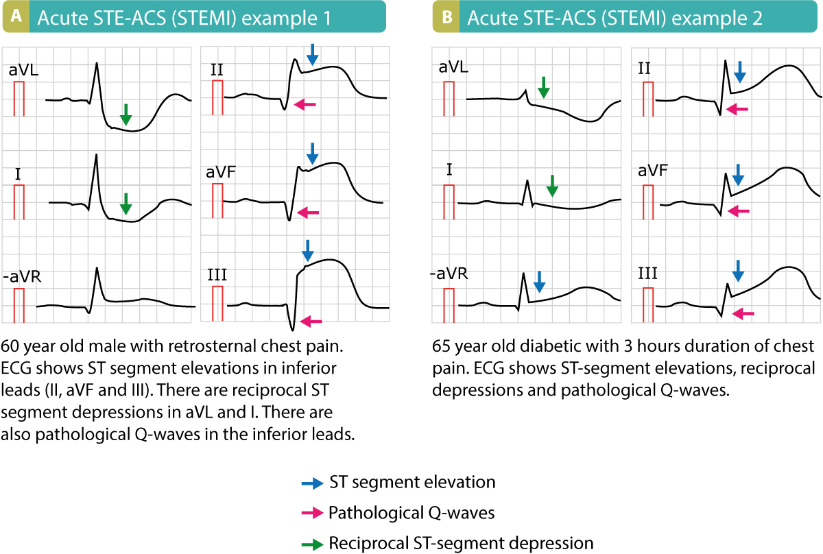 Figure 1. Examples of STE-ACS (STEMI). Note that these patients presented with pathological Q-waves, which means that these ECGs were recorded several hours after symptom onset or those are signs of old infarction.
